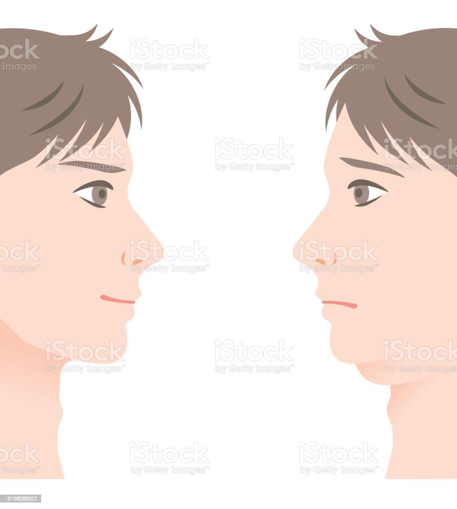 Ilustración de Hombres Con Doble Mentón Y Barbilla Delgada Antes Y ...