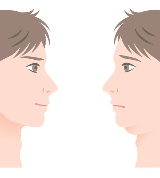 men with double chin and slim chin. before and after men with double chin and beautiful slim chin. men's health and beauty treatment before and after human jaw bone stock illustrations