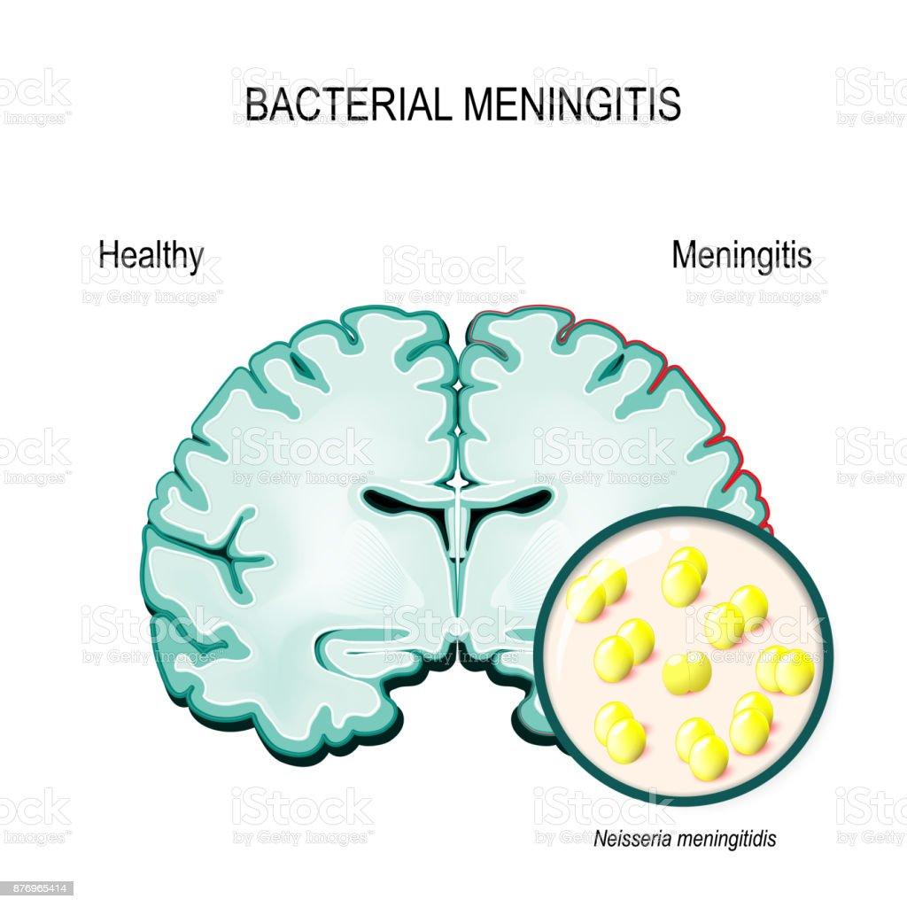 Meningitis Menschliche Gehirn Und Meningokokkenbakterien Stock ...
