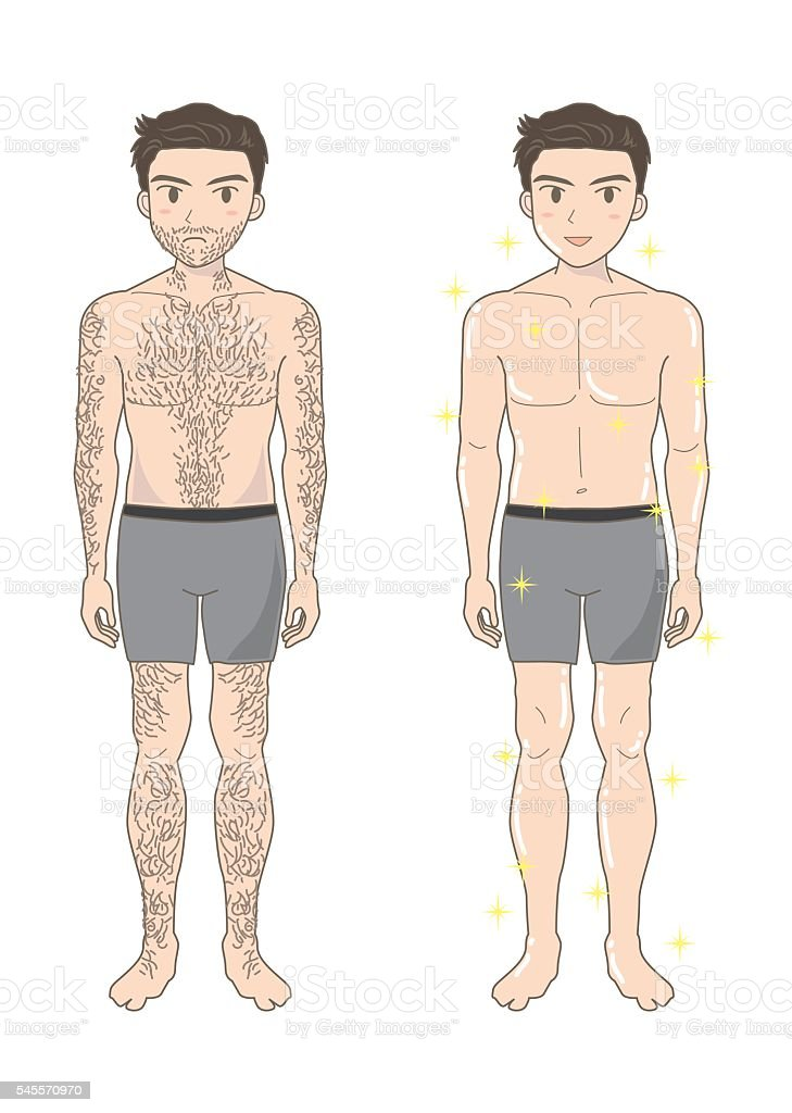 Men's beauty depilation A  (before and after) vector art illustration