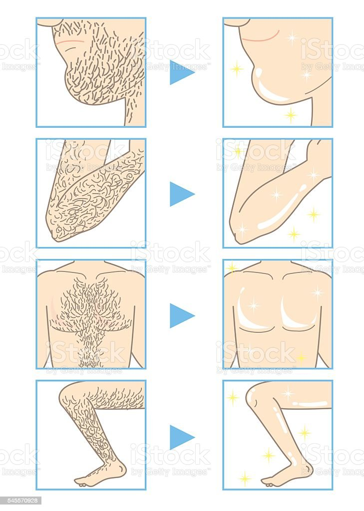 Men's beauty depilation B  (before and after) vector art illustration