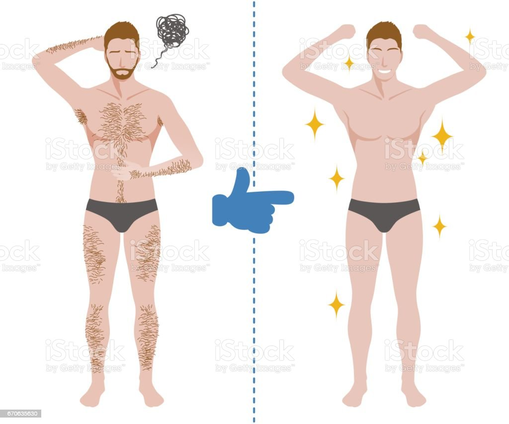 Mens Hair Removal Before After Concept Unwanted Hair