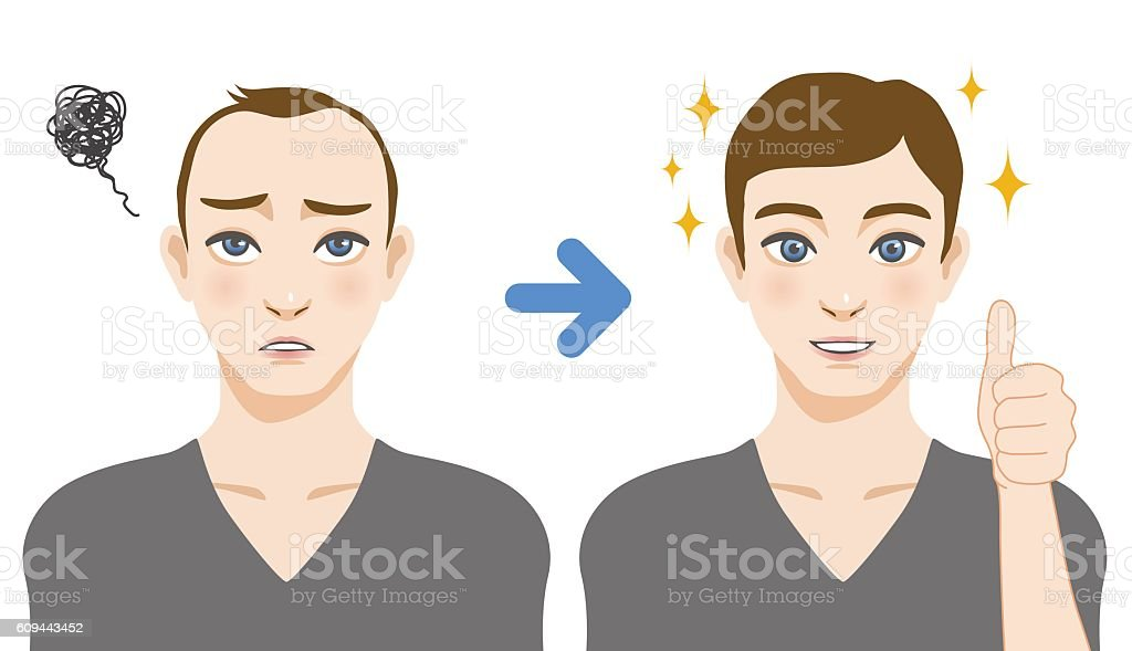 men's thinning hair treatment before after image illustration vector art illustration