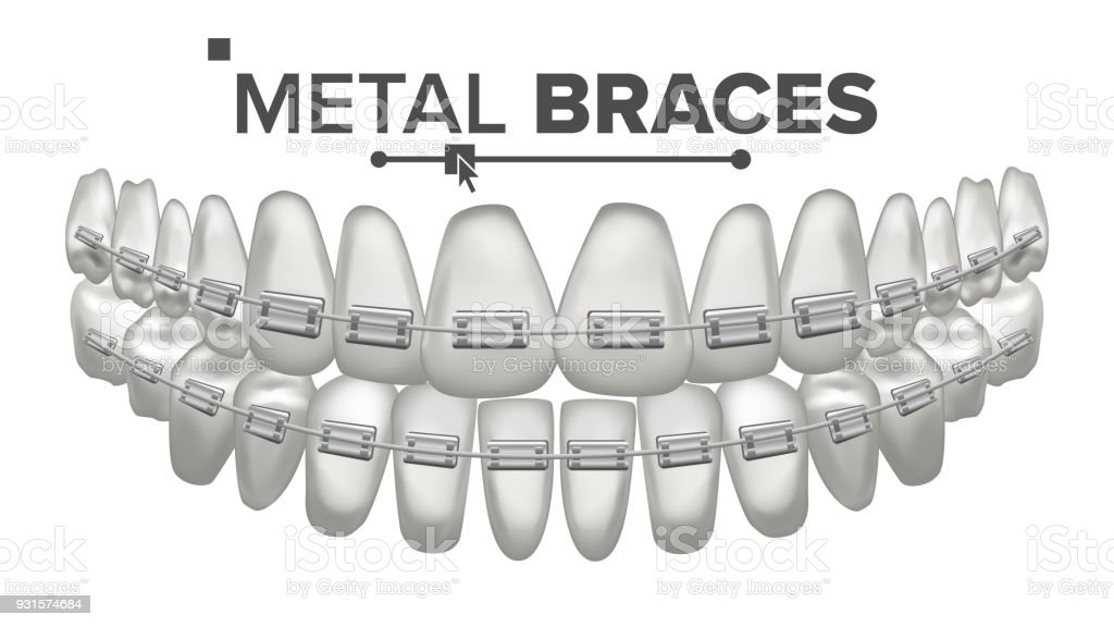 Metal Braces Vector. Human Jaw. Braces On Teeth. Smile With Braces. 3D Realistic Isolated Illustration vector art illustration
