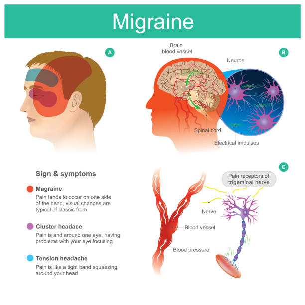 Migraine vector art illustration