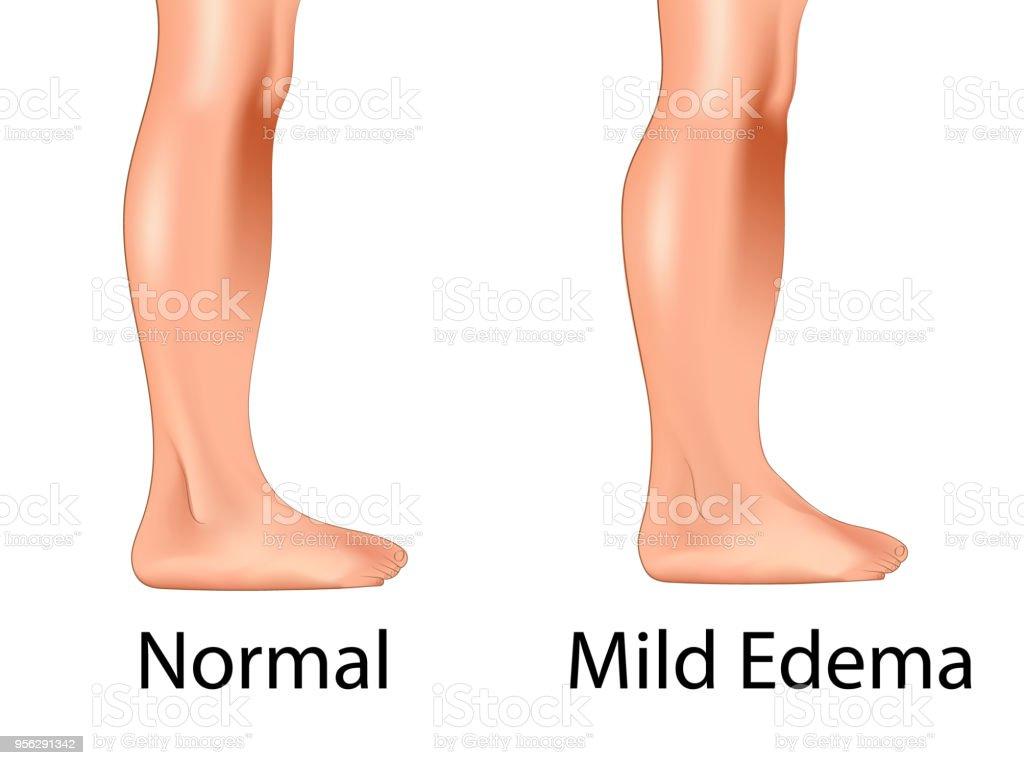 Mild edema with normal leg vector art illustration