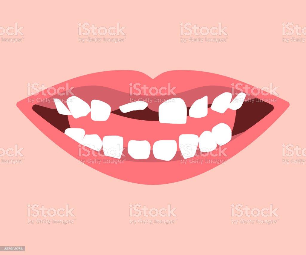 Milchzahn Und Bleibenden Zähnen In Eruption Stock Vektor Art und ...