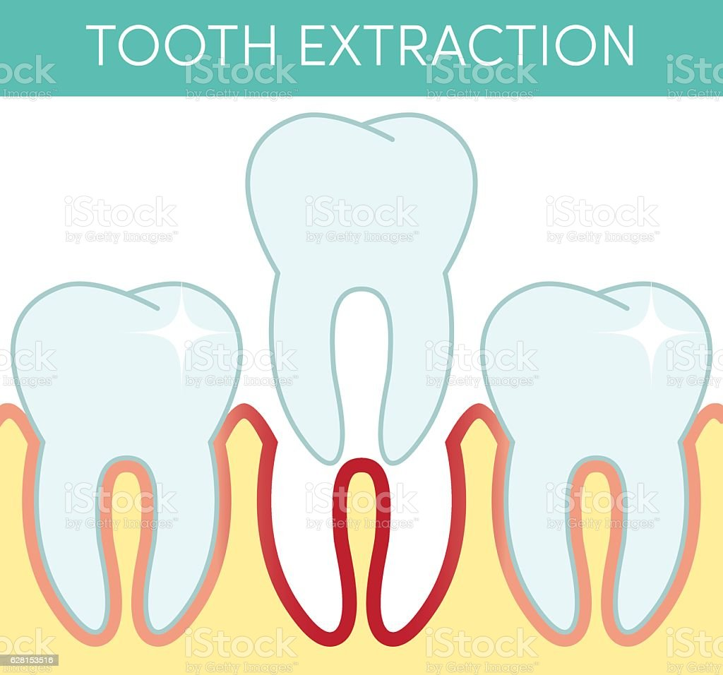 Molar Tooth Removal Vektor Illustration 628153516 | iStock