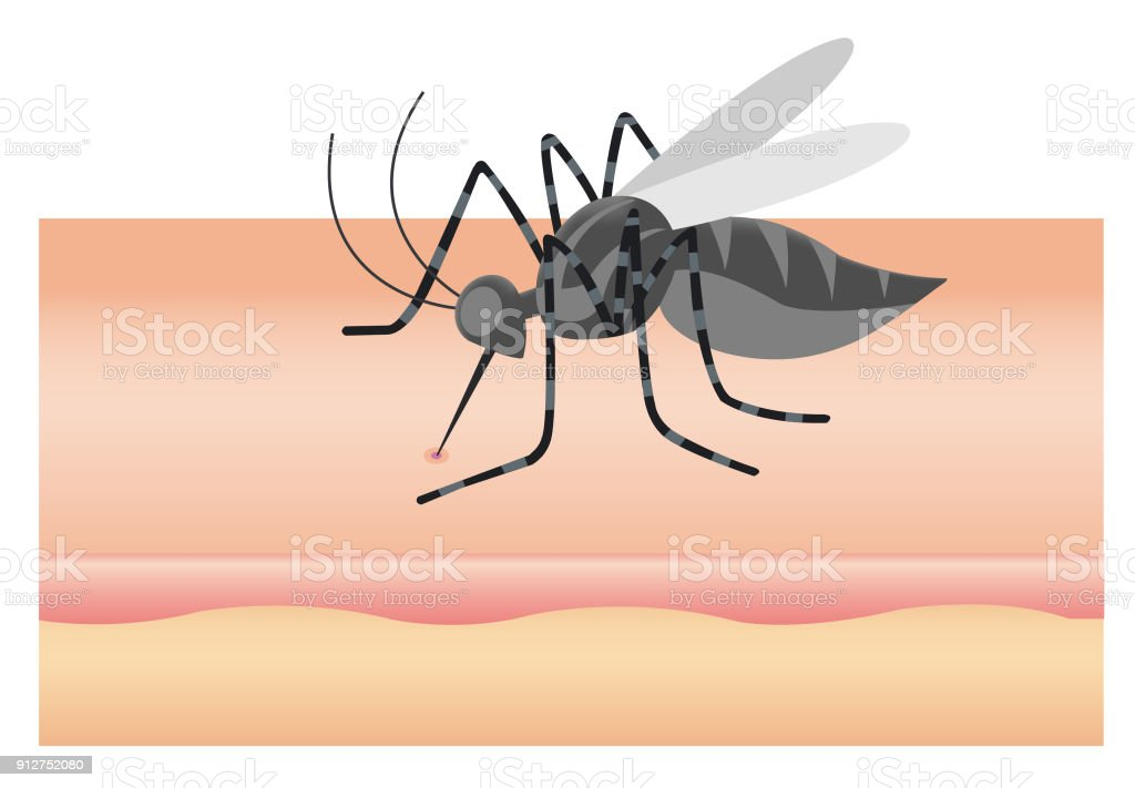 Mosquito sucking blood through human skin icon. Symptoms of dengue fever vector art illustration