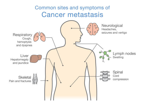 Most common sites and symptoms of Cancer Metastasis. Most common sites and symptoms of Cancer Metastasis. Illustration about medical diagram of deadly diseases. metastasis stock illustrations