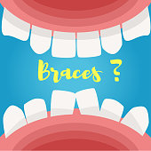 Mouth. View from the inside. Braces word. Vector. Cartoon Isolated art Flat