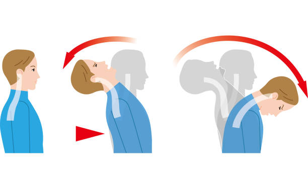 Movement of the neck due to impact from behind. Whiplash injury. vector art illustration