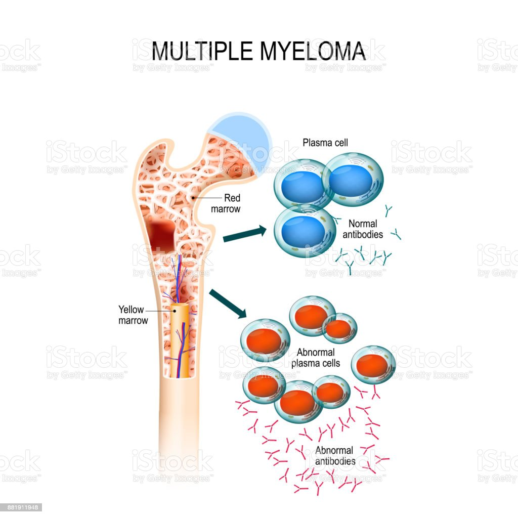 Multiple myeloma is a cancer of the bone marrow. vector art illustration