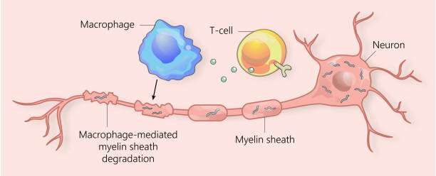 Multiple sclerosis and myelin sheath breakdown Multiple sclerosis is caused by auto-reactive immune cells acting onto neurons. Macrophage causes selective degradation of myelin sheath. neural axon stock illustrations
