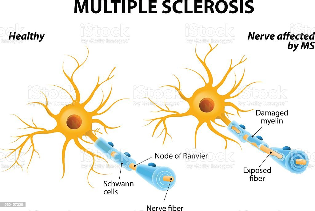 Multiple Sclerosis Multiple sclerosis or MS. autoimmune disease. the nerves of the brain and spinal cord are damaged by one's own immune system. resulting in loss of muscle control, vision and balance. Anatomy stock vector