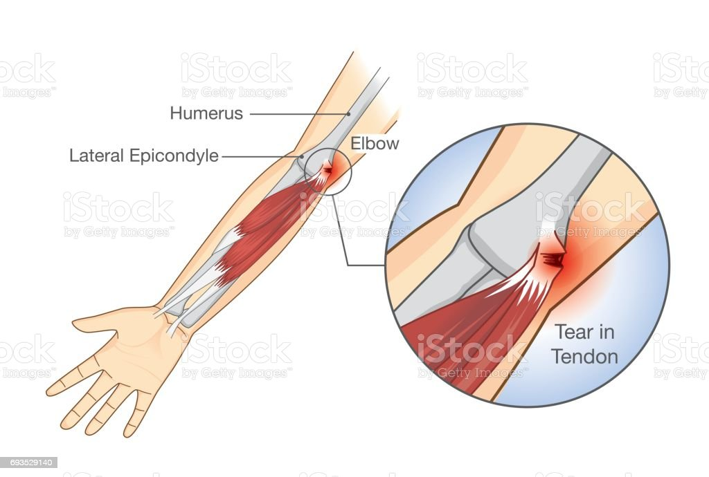 Muscle injury and tear in tendon at elbow area. vector art illustration