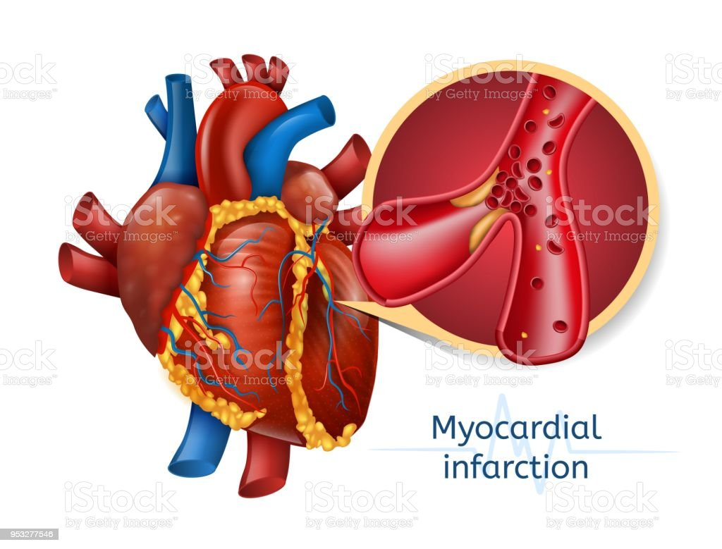 myocardial infarction Myocardial infarction, commonly known as a heart attack, is the irreversible necrosis of heart muscle secondary to prolonged ischemia this usually results from an imbalance in oxygen supply and demand, which is most often caused by plaque rupture with thrombus formation in a coronary vessel, resulting in an acute reduction of blood supply to.