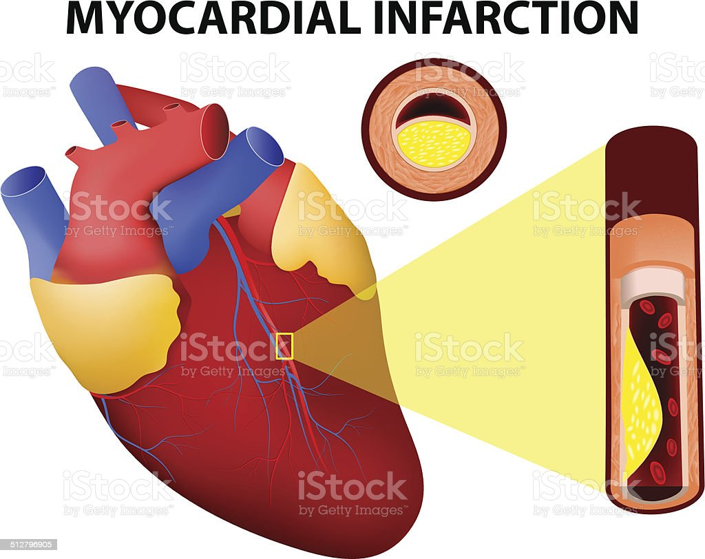 Myocardial Infarction Stock Vector Art & More Images of Anatomy ...