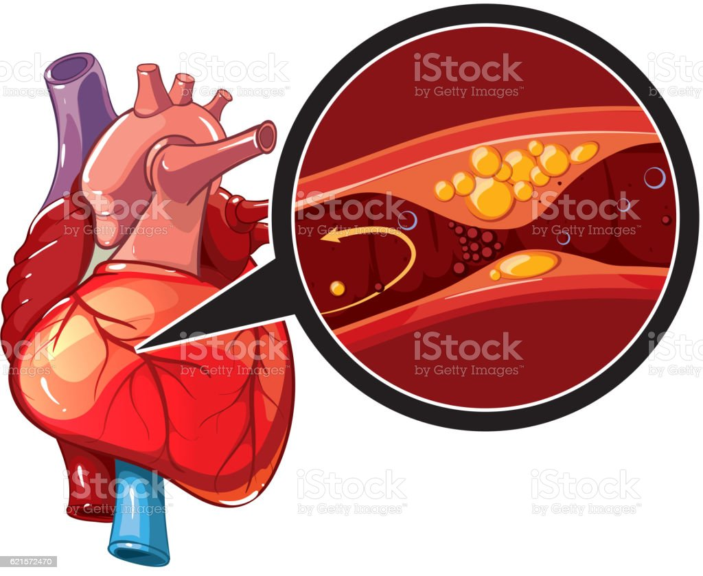 Myocardial infarction vector vector art illustration