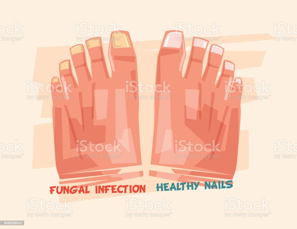 Nail Fungus Stock Vector Art & More Images of Barefoot 848205544 ...