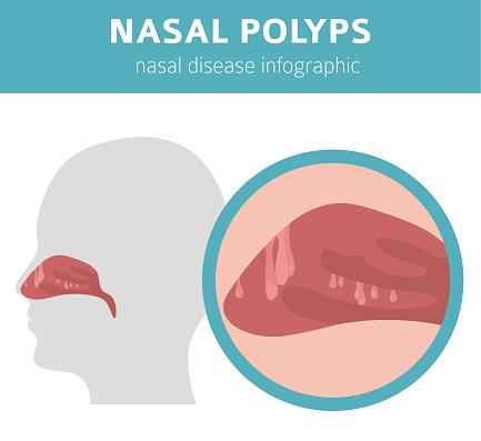 Nasal diseases. Nasal polyps causes, diagnosis and treatment medical infographic design