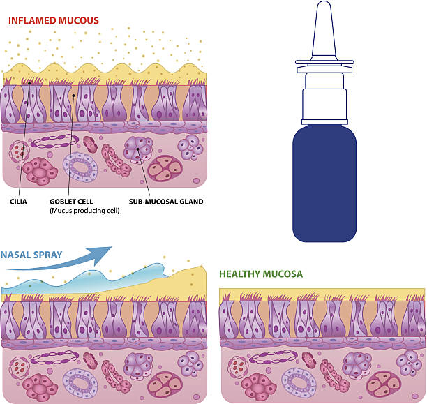 Nasal mucosa cells and micro cilia vector scheme Inflamed and normal nasal mucosa cells and micro cilia vector scheme with nasal spray effect and bottle epithelium stock illustrations