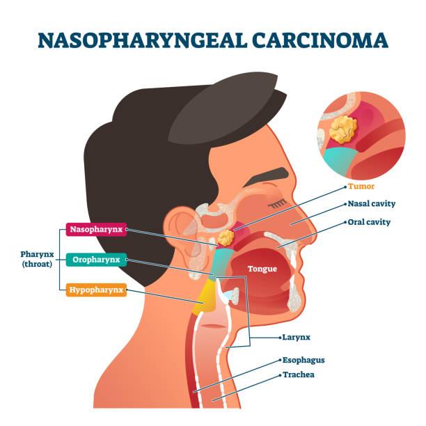 Nasopharyngeal carcinoma tumor, vector illustration vector art illustration