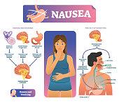 Nausea vector illustration. Labeled medical vomiting explanation scheme.