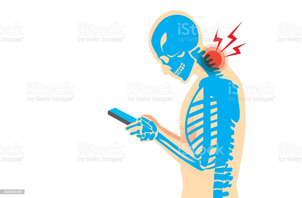 Neck Pain from Smartphone Neck bone and muscles have pain because smartphone addiction and play long time. Addict stock vector