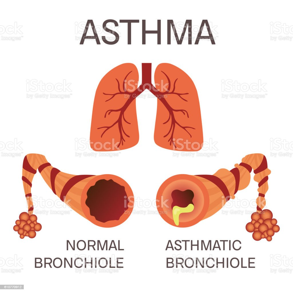 Normal And Asthmatic Bronchioles Stock Vector Art & More Images of ...