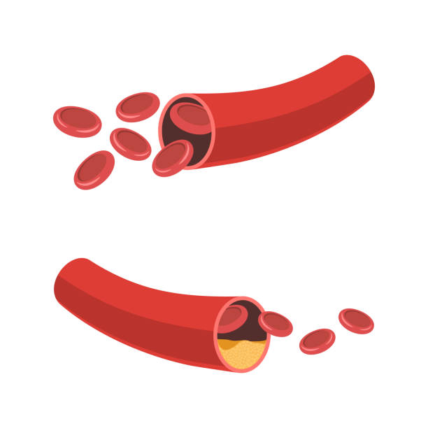 Normal artery and narrowing vector art illustration