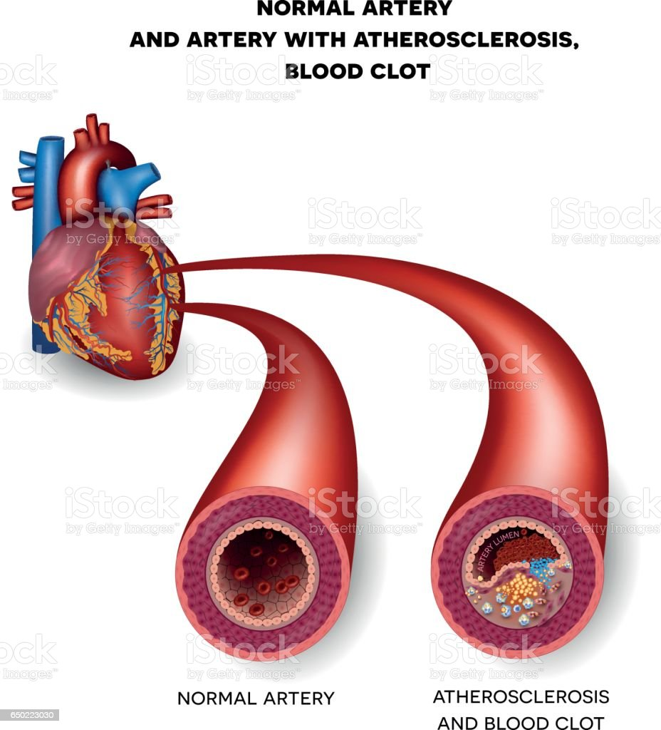 Normal artery and unhealthy artery with blood clot vector art illustration