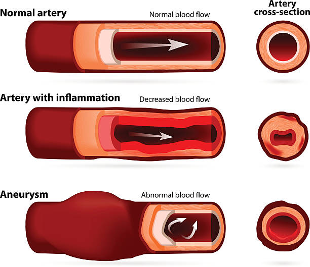 Normal artery, inflamed or narrowed artery and artery with an aneurysm vector art illustration