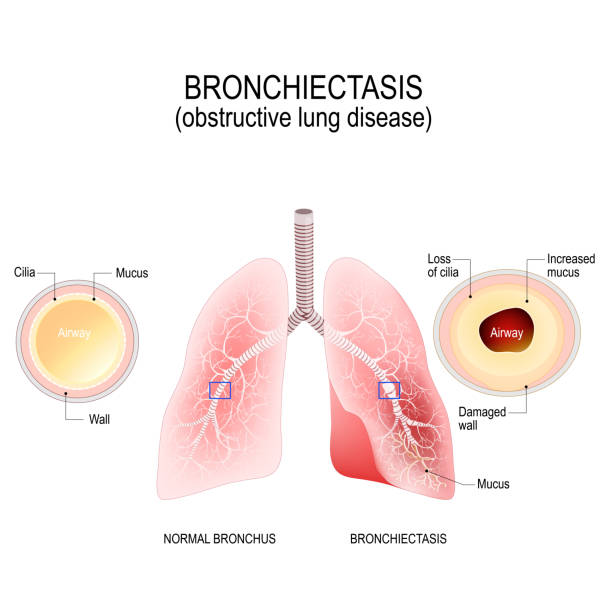 Normal bronchus and bronchiectasis. Bronchiectasis. Normal bronchus and bronchiectasis. enlarged small airways that collect mucus and cause recurrent lung infections. obstructive lung disease chronic illness stock illustrations