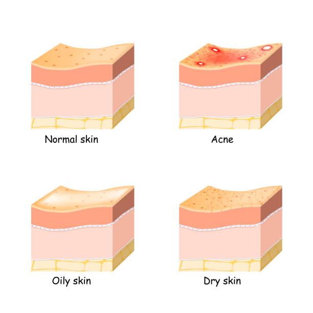 Normal, dry and oily skin. Acne. Skin disorder. vector art illustration