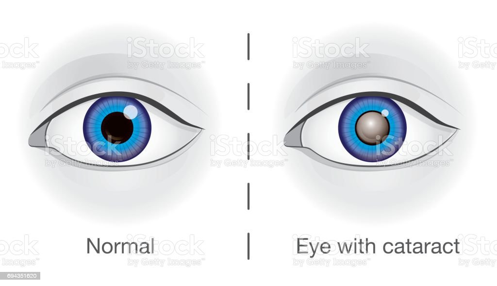 Normal eye and lens clouded by cataract. vector art illustration