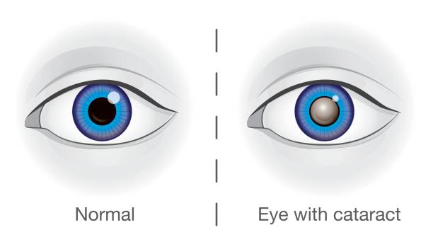 Normal eye and lens clouded by cataract. Normal eye and lens clouded by cataract. Illustration about health and eyesight. human eye stock illustrations