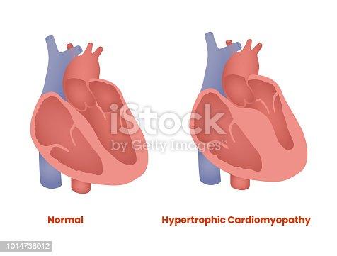 Hypertrophic Cardiomyopathy vs healthy heart vector illustration