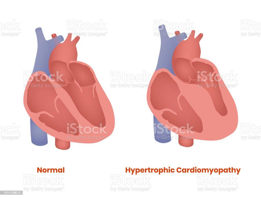 Normal Heart and hypertrophic heart. Hypertrophic Cardiomyopathy vector illustration vector art illustration