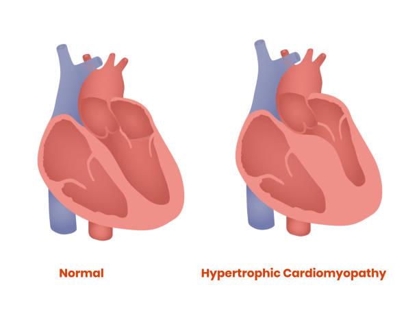 illustrazioni stock, clip art, cartoni animati e icone di tendenza di normal heart and hypertrophic heart. hypertrophic cardiomyopathy vector illustration - mancino