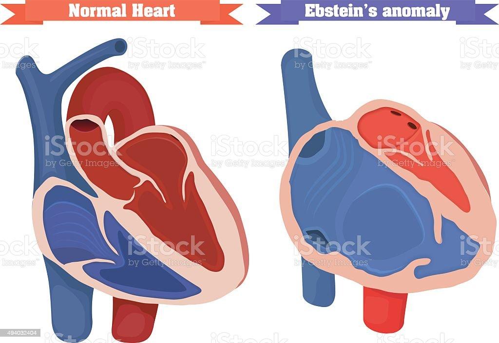 Normal heart chambers anatomy versus Ebstein anomaly vector illustration vector art illustration