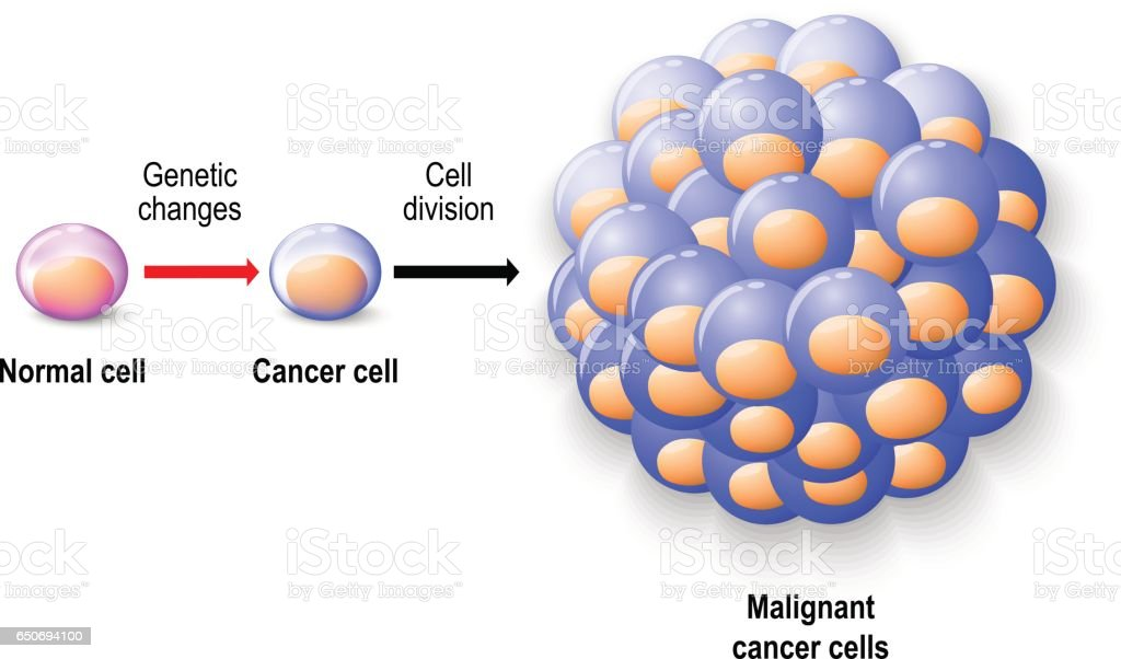 cancer oncology and malignant tumor cells Tumor grades and types  (also called brain cancer) contain cancer cells: malignant brain tumors are generally more serious and often are a threat to life.