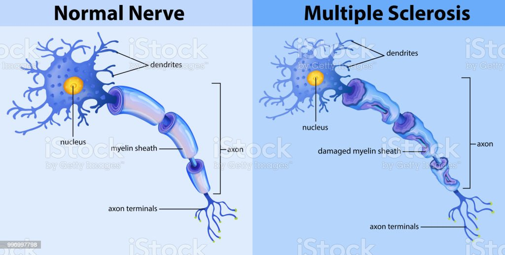 Normal nerve and multiple sclerosis Normal nerve and multiple sclerosis illustration Art stock vector