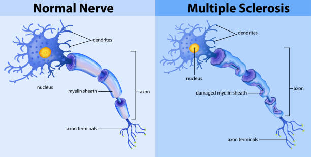 Normal nerve and multiple sclerosis Normal nerve and multiple sclerosis illustration neural axon stock illustrations