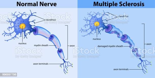 Normal Nerve And Multiple Sclerosis Stock Illustration - Download Image Now