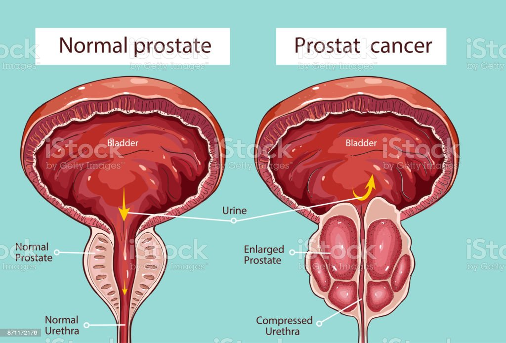 Normale Prostata Und Akute Prostatitis Medizinische Illustration ...