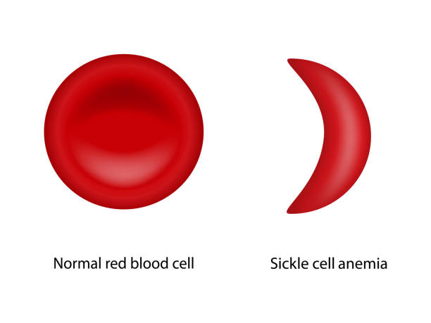 Normal red blood cell and Sickle cell anemia Normal red blood cell and Sickle cell anemia, Scientific study red blood cell stock illustrations