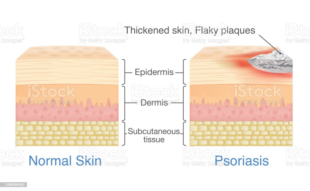 normal skin layer and skin when plaque psoriasis signs and symptoms appear   royalty-free