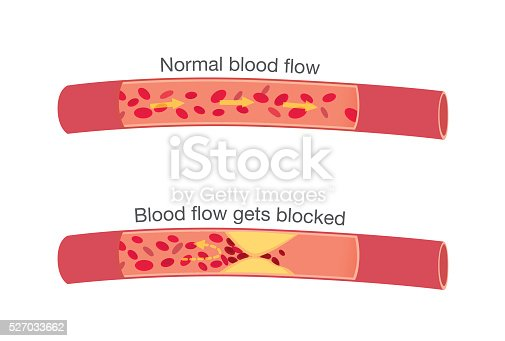 istock Normal stages of blood flow and blocked stages 527033662