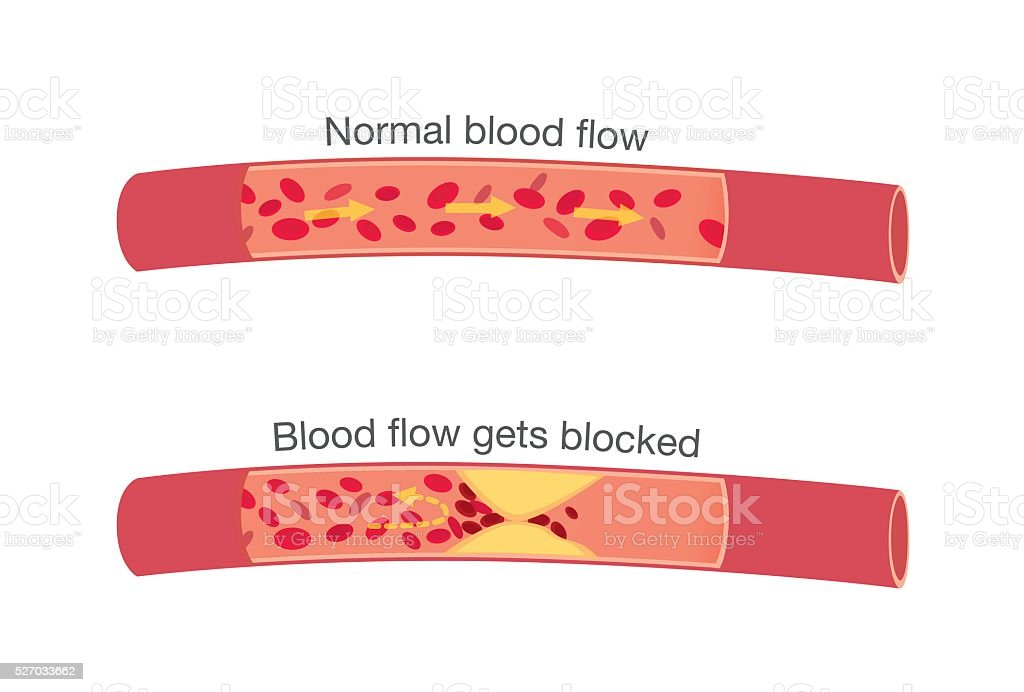 Normal stages of blood flow and blocked stages vector art illustration